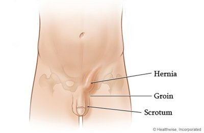 inguinal hernia surgery recovery advice