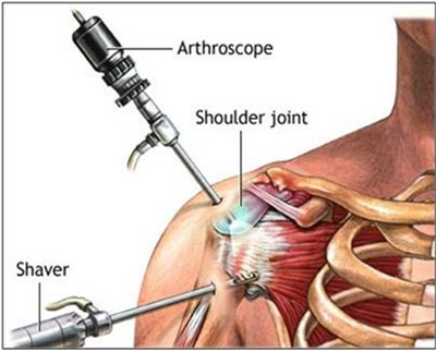 rotator cuff exercises after surgery