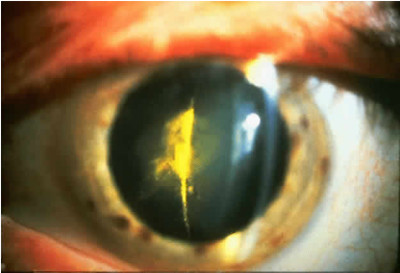 which precautions to take after cataract surgery