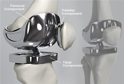 knee surgery cartilage replacement