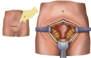 hysterectomy operation image