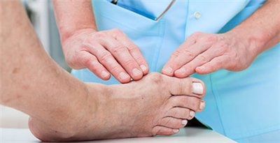 recovery from foot bunion surgery