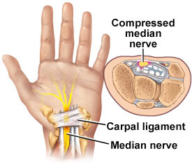 Compressed median nerve