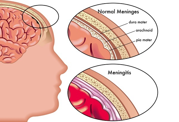 meningitis symptoms and pictures