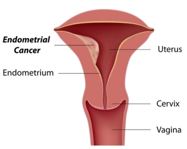 womb cancer symptoms and signs
