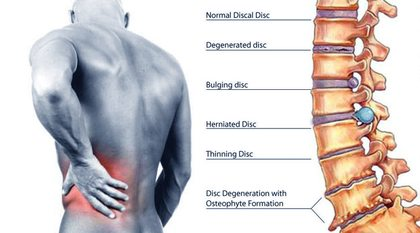 right side back pain after exercise