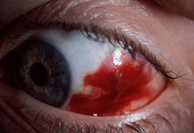 burst blood vessel in eye getting bigger