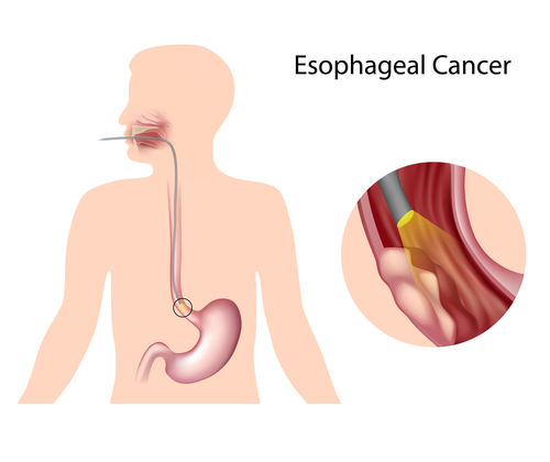 oesophagus cancer breathlessness