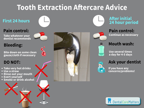 What to do After Tooth Extraction Pain relief