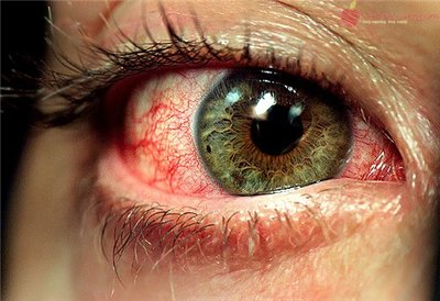 burning eyes symptom