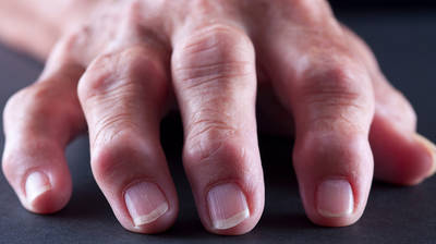 finger joint pain medications