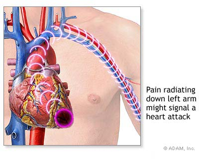 chest pain on the left side: common causes and what to do, Skeleton