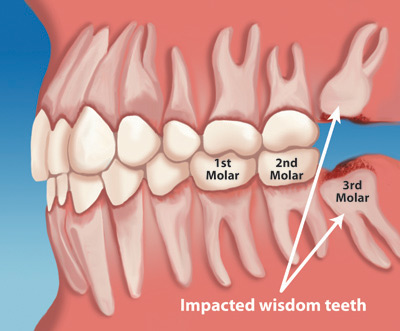 what causes bad breath after wisdom teeth extraction