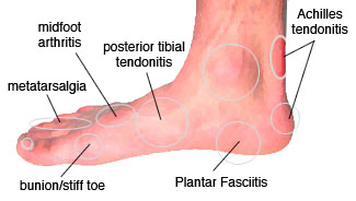 common foot pain after running