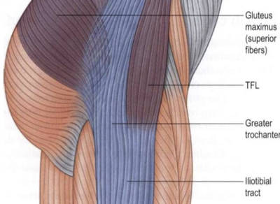 tensor fasciae latae pain from running