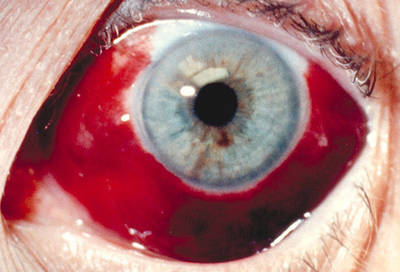 bleeding behind the eye macular degeneration