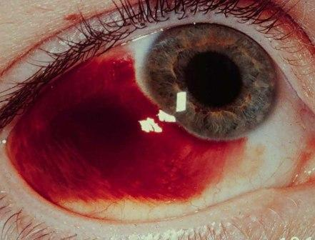 bleeding behind the eye and high blood pressure