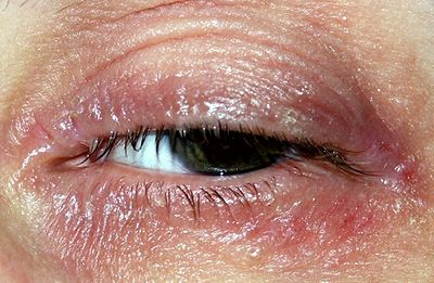 Eczema Around Eyes Causes And Ways Of Treatment Iytmed Com
