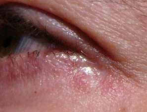 toddler eczema around eyes picture