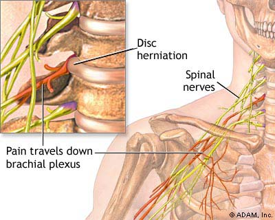 pinched nerve in shoulder blade treatment
