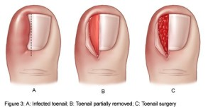 toenail pain from shoes