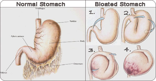 Normal Stomach vs Bloated Stomach