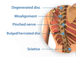 severe lower back pain comes and goes