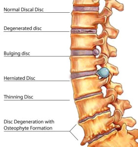 severe lower back pain and headache