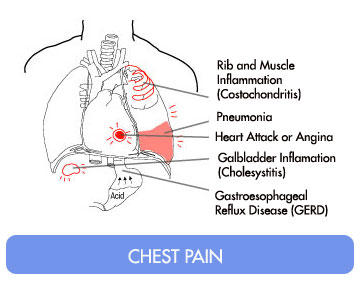 right side chest pain underarm