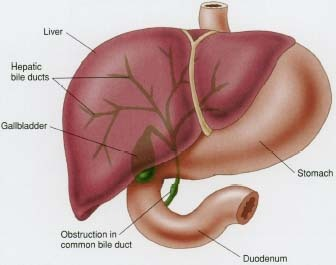 bile duct obstruction after liver transplant