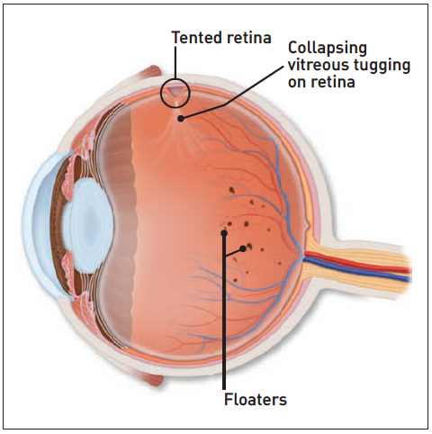 flashing light in eye and headache