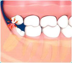 swollen gum around wisdom tooth treatment