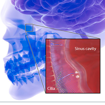 sinusitis symptoms headache