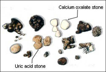Kidney stones types and sizes