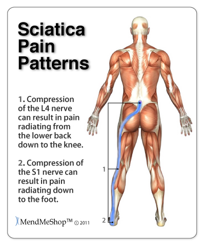 sharp pain in left leg at night in case of Sciatica