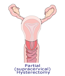 partial hysterectomy image