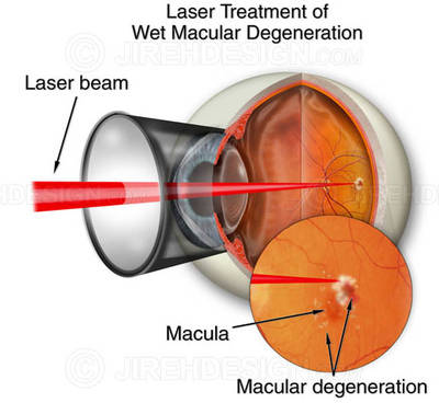 In laser photocoagulation treatment of damp AMD, a laser is utilized to destroy and seal new members vessels to avoid leak and more damage to the retina.