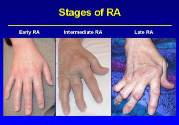 rheumatoid arthritis affected joints