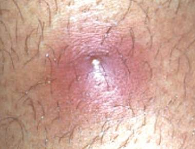 infected ingrown pubic hair images