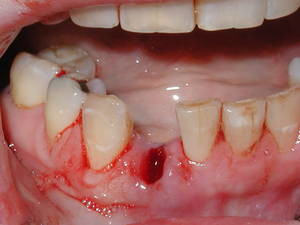 tooth removal during pregnancy