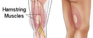 pain in the back thigh area