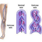 varicose veins during pregnancy prevention