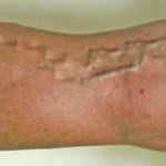 varicose veins home treatment