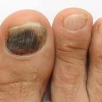 big toe injury blood under nail