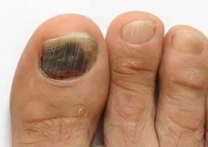 big toe injury blood under nail