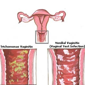 causes of yeast infection after menstruation