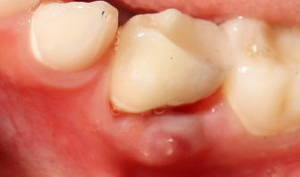 severe tooth pain under a crown