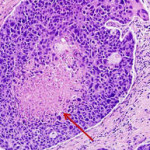 invasive ductal carcinoma prognosis stage 1, 2, 3