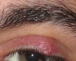 stye eyelid treatment
