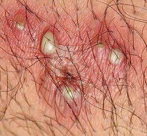 Difference between ingrown pubic hair and herpes